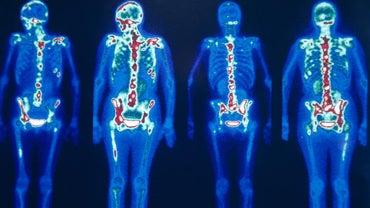 What Is a Nuclear Bone Scan?