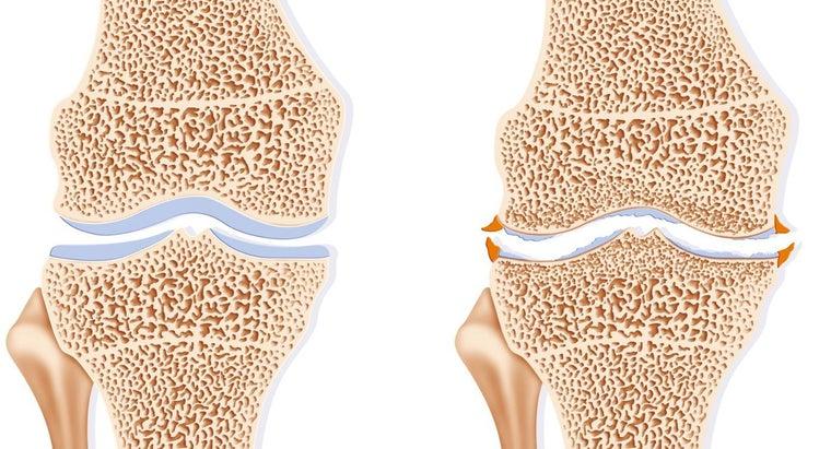 osteophyte-formation