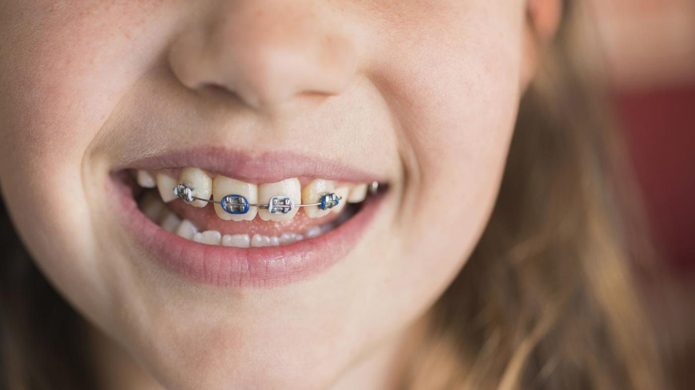 How Do You Find Out Where Fake Braces Can Be Purchased