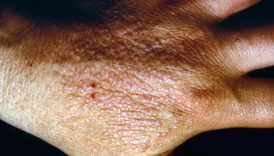 How Do People Contract Dermatitis?