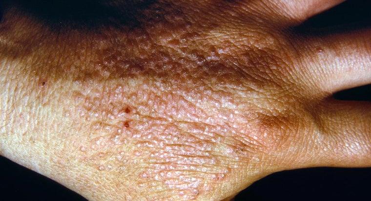 people-contract-dermatitis