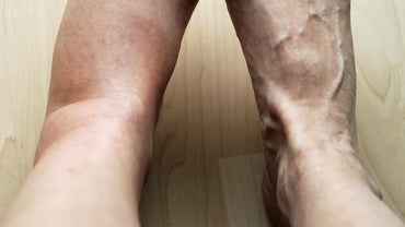 What Are Some Possible Causes of Pain and Swelling in Your Left Leg?