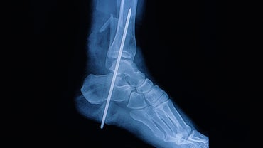 What Is the Preferred Treatment for a Fibula Fracture?