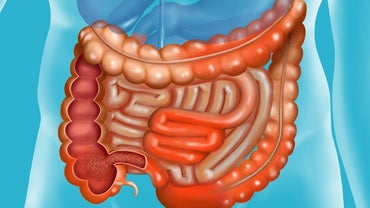 What Is the Prognosis of Crohn's Disease?
