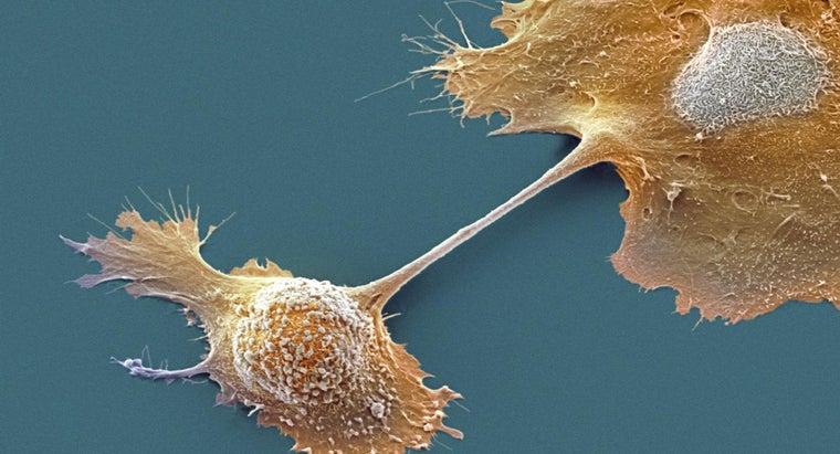 prognosis-someone-stage-iv-pancreatic-cancer