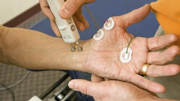 How Do You Read Results of an EMG Nerve Conduction Test?