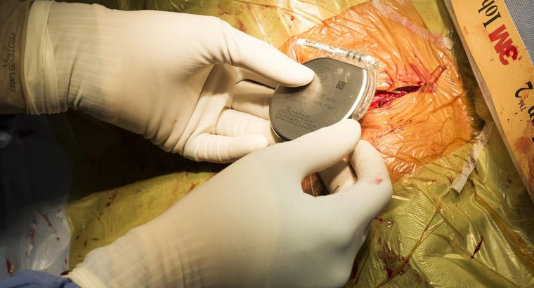 recovery-process-pacemaker-surgery-patients
