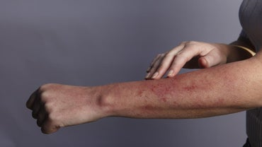 What Is a Red Rash Under the Skin?