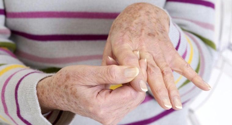 remedies-arthritis-hands