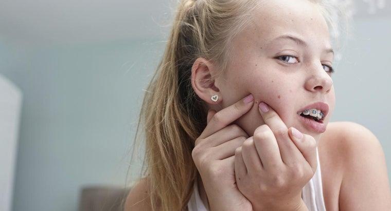 remove-redness-pimple