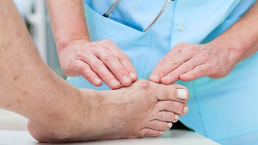How Do You Get Rid of Bunions?