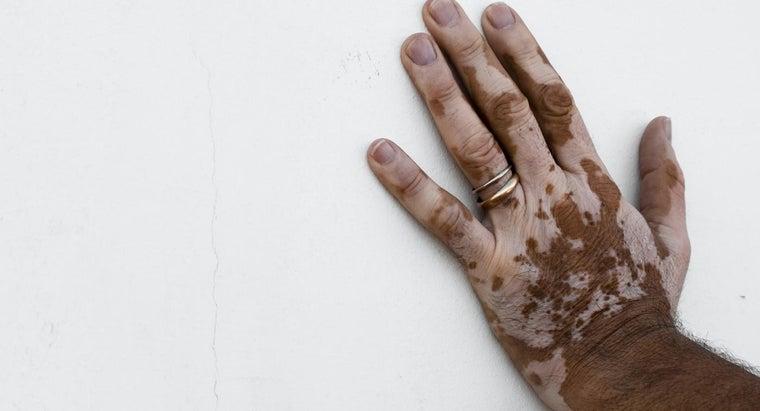rid-skin-discoloration