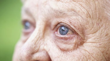 What Is Senile Nuclear Sclerosis?