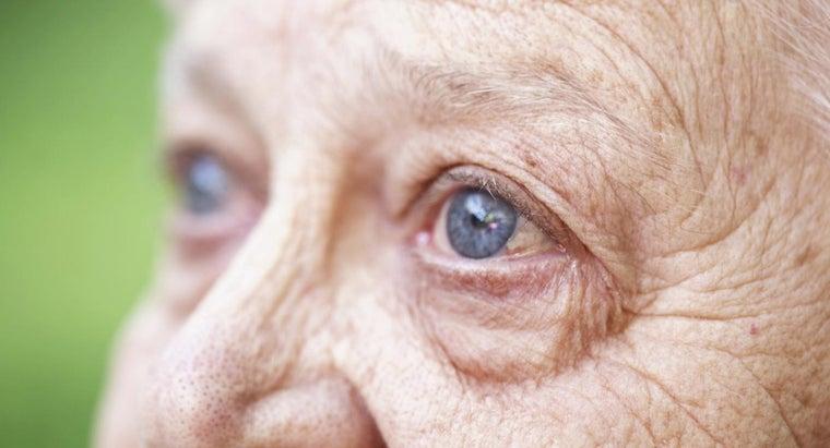 senile-nuclear-sclerosis
