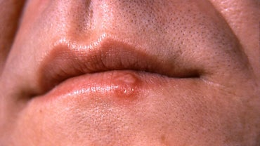 Should You Put Salt on a Cold Sore?