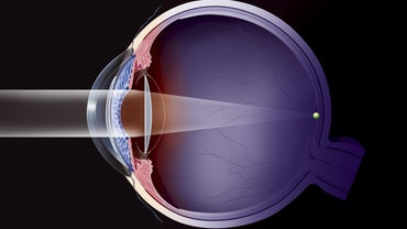 What Is Standard Recovery Time After Cataract Surgery?