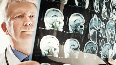 What Are Some Symptoms of Anaplastic Astrocytoma?