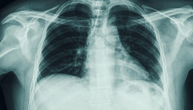 What Are the Symptoms of a Cracked Rib?