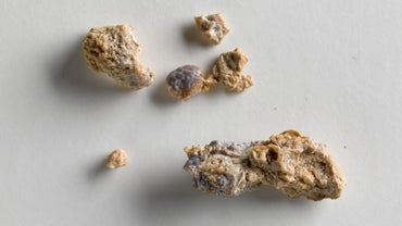What Are the Symptoms of Kidney Stones?