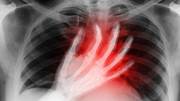 What Are the Symptoms of a Mini Heart Attack?