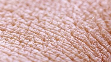 At What Temperature Does Human Skin Burn?
