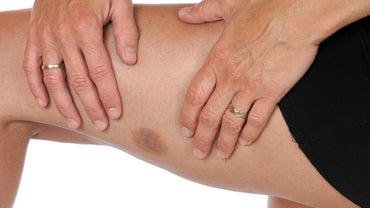 How Do I Treat a Deep Bruise?