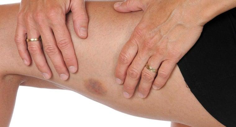 treat-deep-bruise