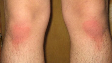 How Do You Treat a Rug Burn?