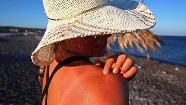 Is Tylenol or Advil Better for Sunburns?
