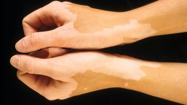 What Are Types of Skin Discoloration Diseases?