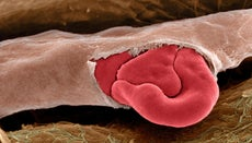 What Causes Blood Vessels to Break?