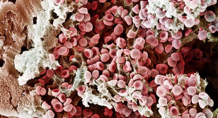 causes-ruptured-blood-vessel