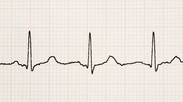 What Is a Heart Tremor?