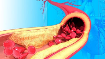 What Is the Structure of Arteries?