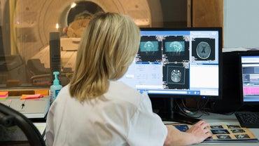 What Does a White Spot on a Brain MRI Mean?