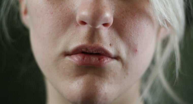 What Causes a Person's Lips to Become Dry or Chapped?