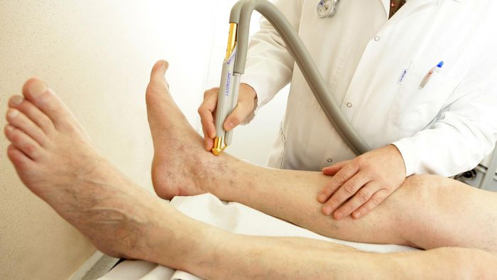 What Is the Treatment for Blocked Arteries in the Legs?