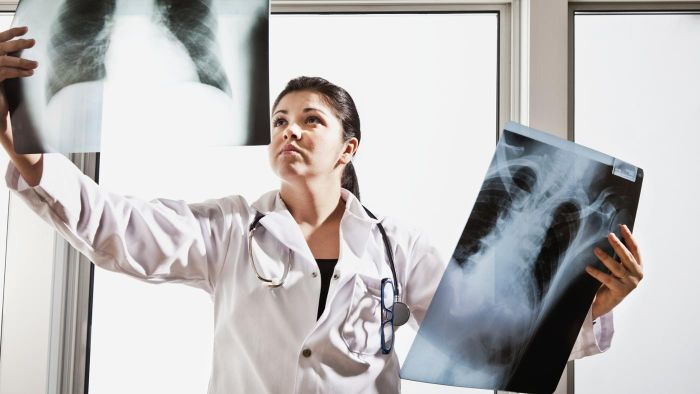 What Are the Possible Causes of a Spot on the Lung?