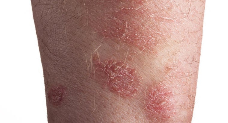 What Are Some Good Home Remedies for Psoriasis?