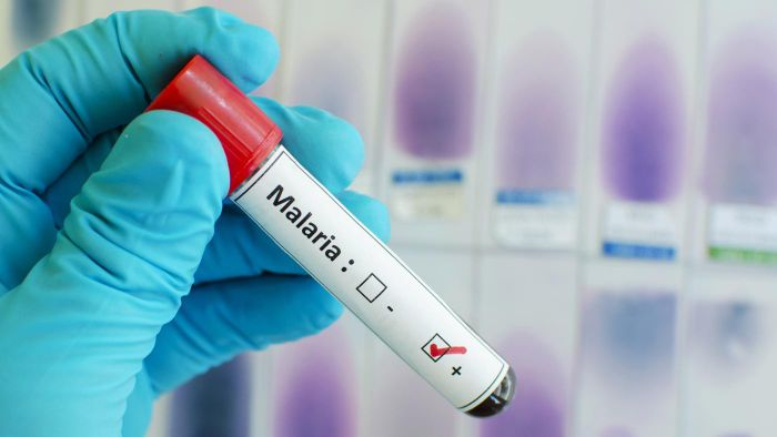 How can you get malaria prevention treatment?
