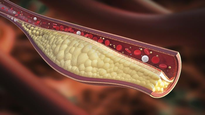 How Are Cholesterol Levels Measured?