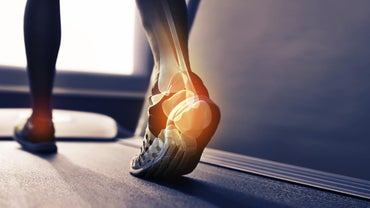 What Causes a Bone Spur on the Heel of Your Foot?