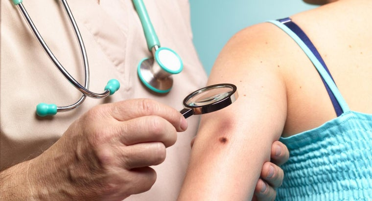 What Are the Symptoms of Melanoma?