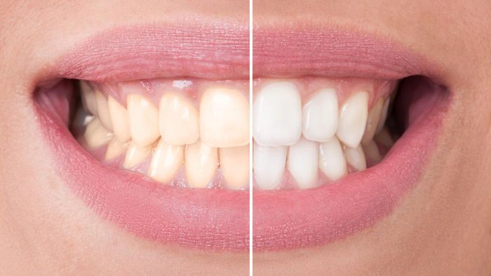 What Are Some Home Remedies for Whitening Teeth?
