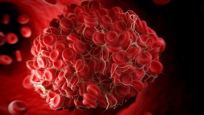 What are the warning signs of a blood clot?