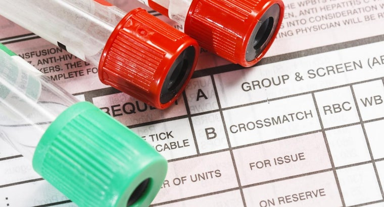 How Do You Find Out What Your Blood Type Is?