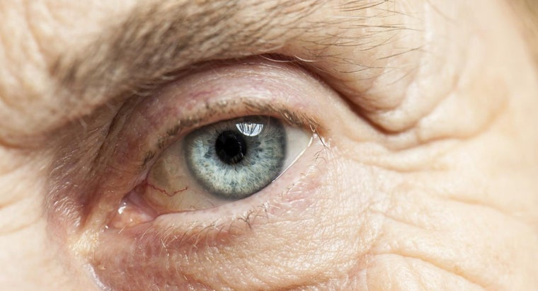What Can One Expect From Their Eyesight Immediately After Cataract Surgery?