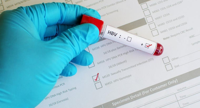 What Does a Positive Result Indicate in a Hepatitis B Core Test?
