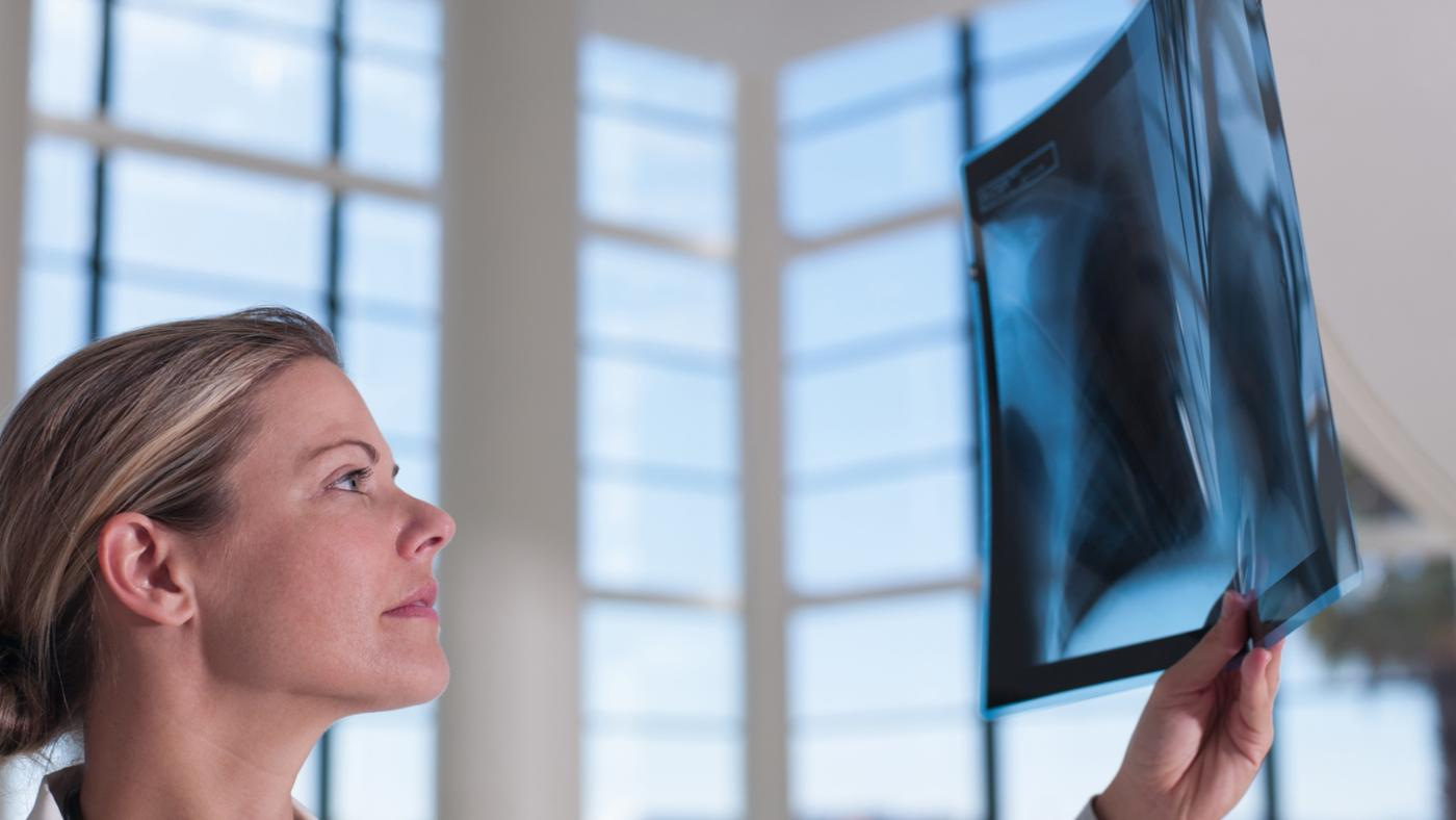 What Is the Prognosis for Lung Sarcoma?