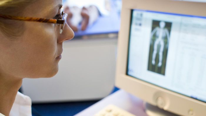 What Is the Treatment for Low Bone Density?